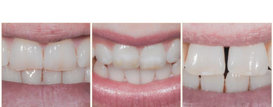Geschäftsführer der ZahnNatur GmbH, Michael Halbig, Harald Meyer und Christina Meyer